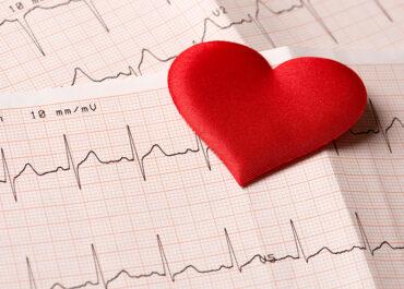 Como é o eletrocardiograma?